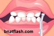 العاب بنات تنظيف الاسنان 2013
